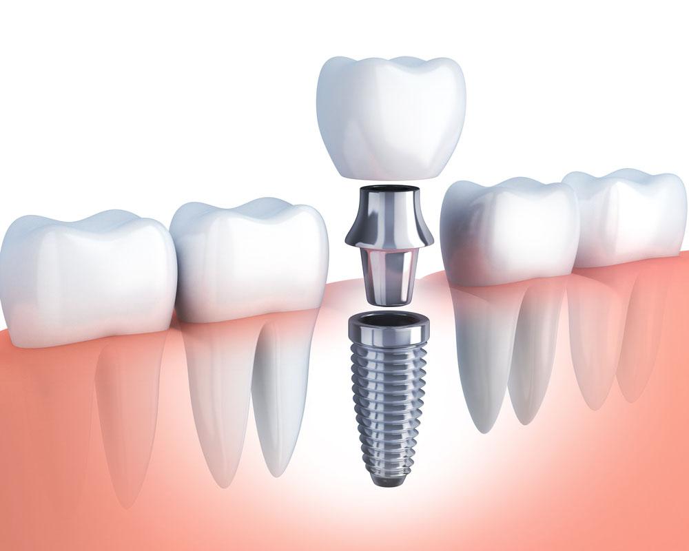 1日で歯が入る術式