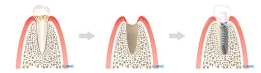 1日で歯が入る術式「抜歯即時荷重」