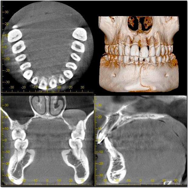 歯や顎の構造を分析 「CT(三次元立体画像)」