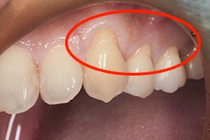 「見た目を修復」する歯肉移植手術